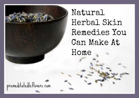 6 Homemade Herbal Skin Treatments you can make at home