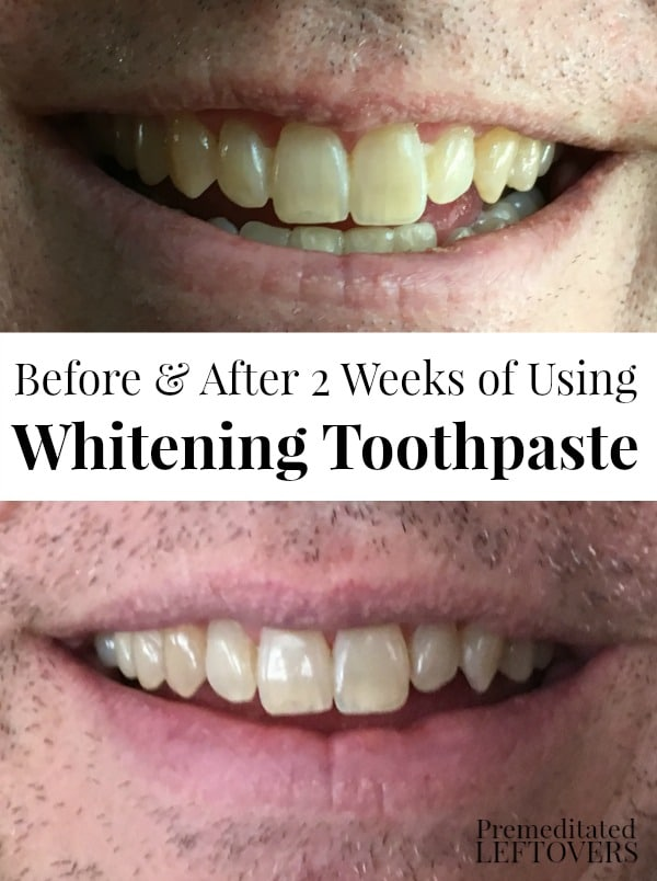 How To Whiten Your Teeth Without Using Whitening Strips Or