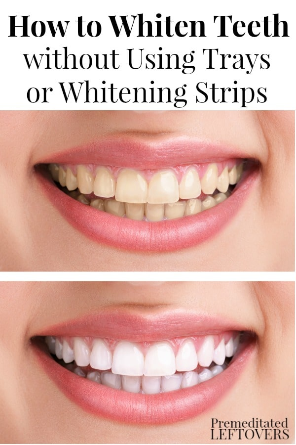 Want to remove stains from your teeth, but don't like peroxide whitening strips or tooth bleaching trays? Here's How to Whiten Your Teeth without Using Whitening Strips or Trays